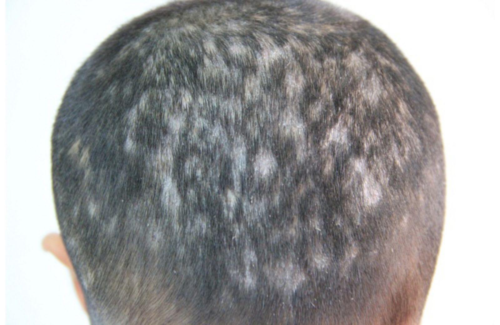 Ảnh bệnh dày sừng da đầu