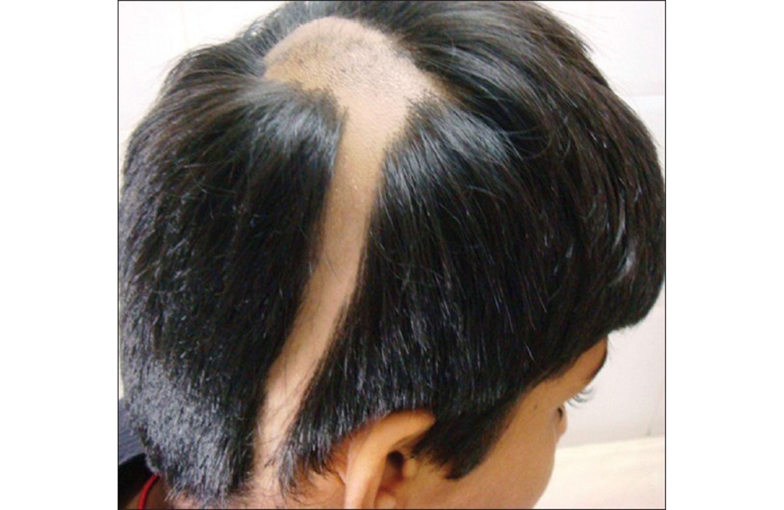 Ảnh bệnh rụng tóc
